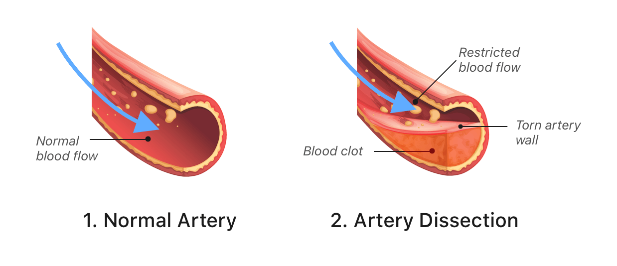 Infographic about artery dissection