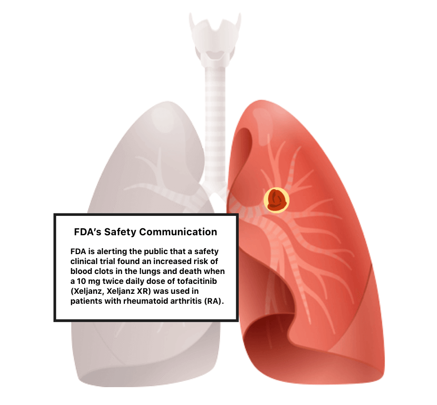 Illustration of a blood blot in the lung
