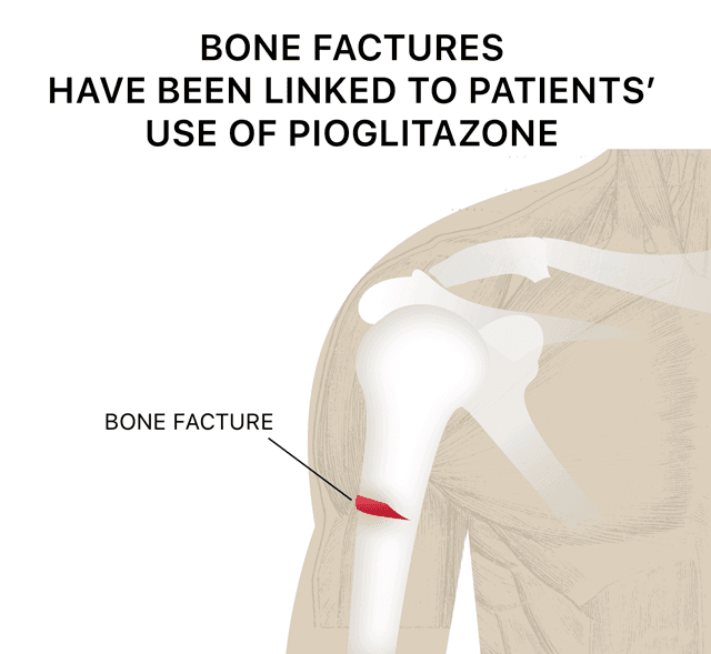 Image that illustrates how bone fractures have been linked to patients' use of pioglitazone.