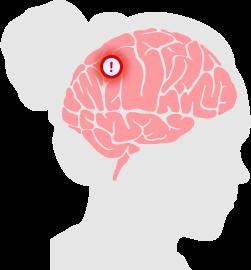 Brain Tumor Diagram