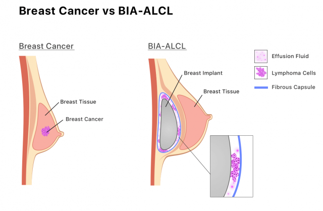 Infographic showing how BIA-ALCL develops in the fluid or scar tissue