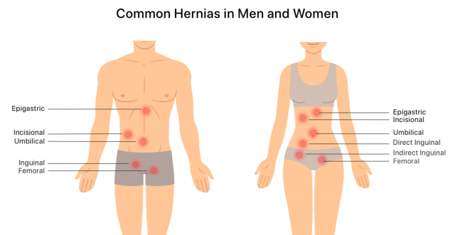 Common hernia locations in men and women