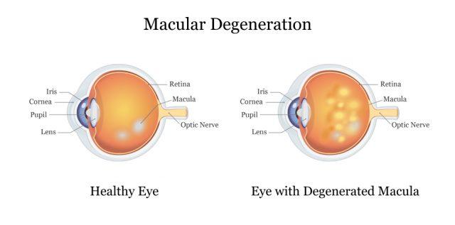 Healthy Eye vs. Eye with Degenerated Macula