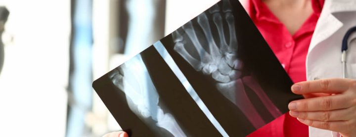 Doctor holding up wrist x-ray