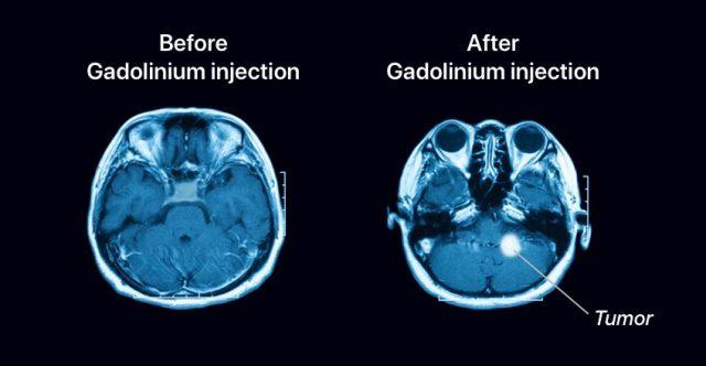 The effect of Gadolinium exposed to MRI scanning.