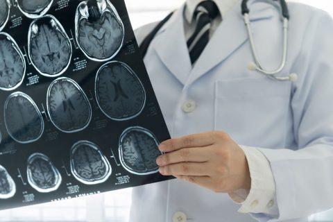 Doctor holding MRI using gadolinium