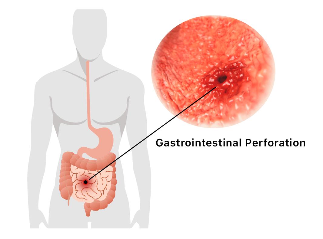 Gastrointestinal Perforation Illustration