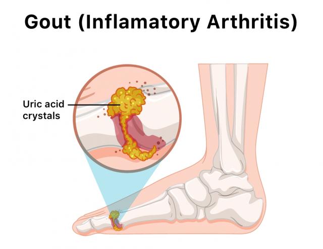 Illustration of gout in big toe