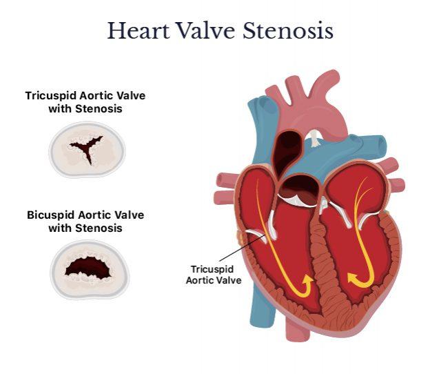 Heart valve stenosis