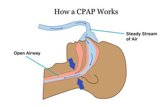 Image displaying how a CPAP works to treat sleep apnea