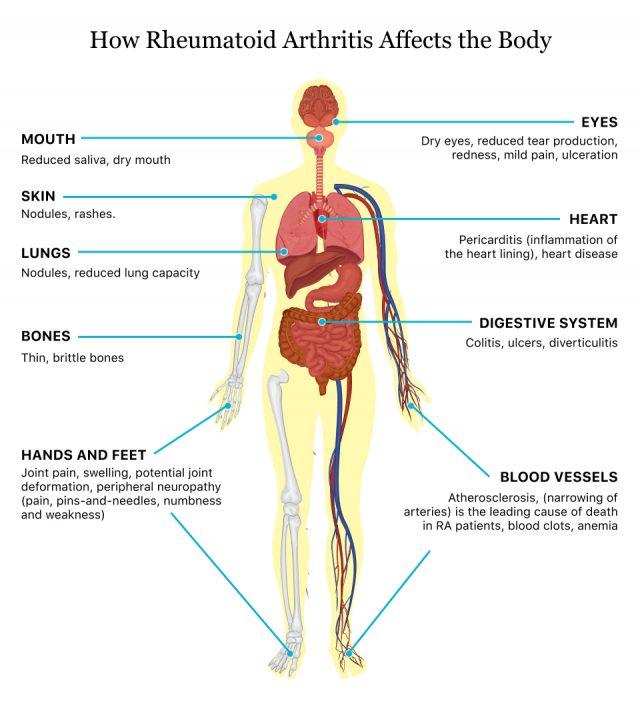 How Rheumatoid Arthritis Affects the Body