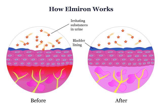 How Elmiron Works