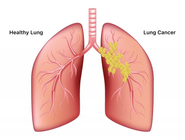 Healthy lung vs. cancer lung