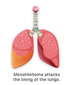 Illustration of mesothelioma in lungs.