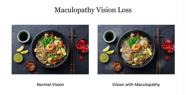 Vision loss from maculopathy