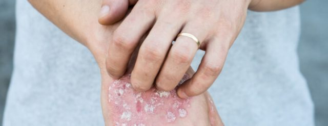 Man with psoriasis on his hand