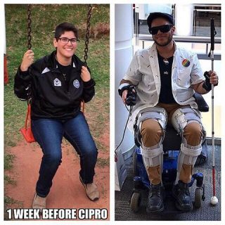 Mateo Rojas before and after Cipro