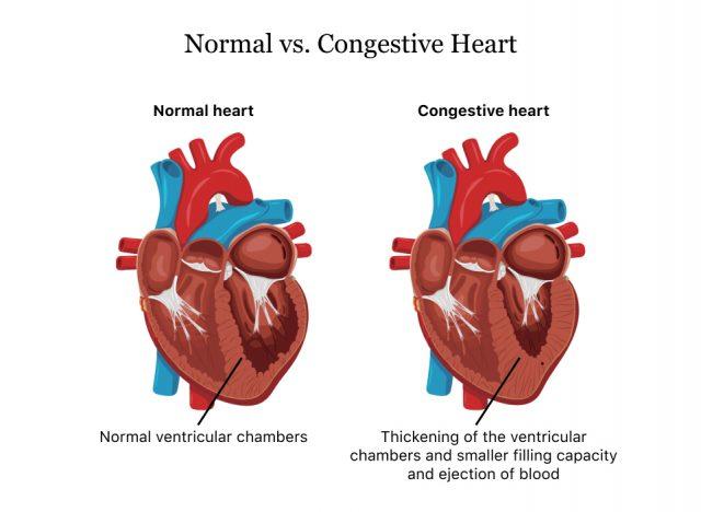 Normal vs. Congestive Heart
