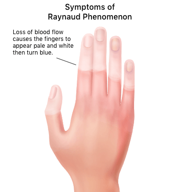 Illustration of loss of blood in hand due to Raynaud's Phenomenon.