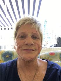 Anne Scott after procedure