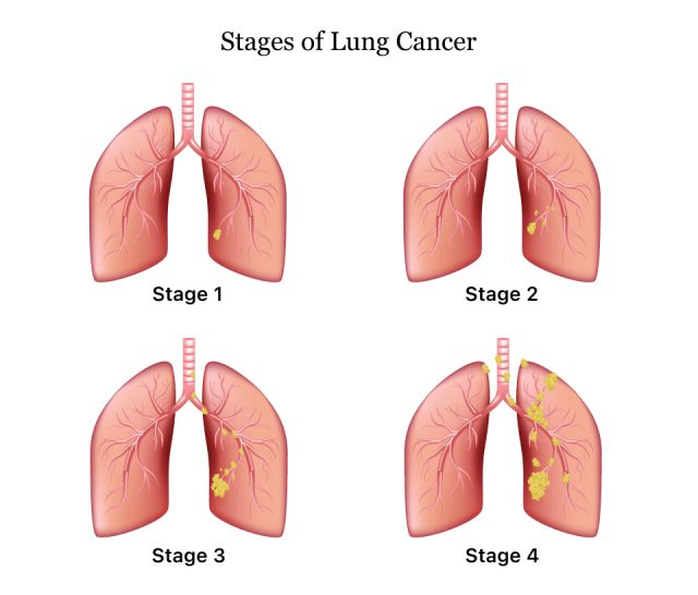 The four stages of lung cancer