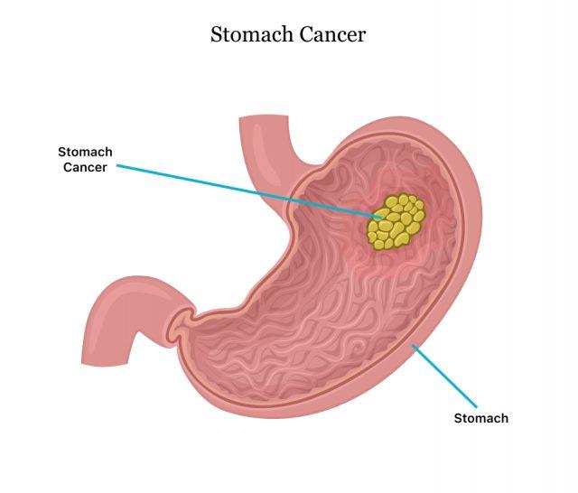 Diagram of stomach tumor