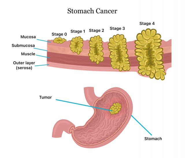 Diagram showing the stages of stomach cancer