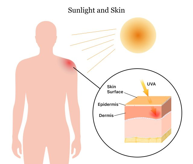 How sunlight causes sunburn on skin