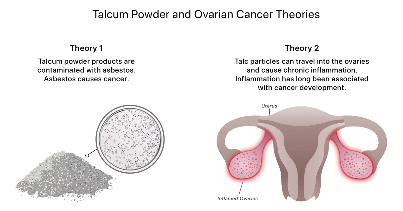 Infographic of talcum powder and ovarian cancer theories