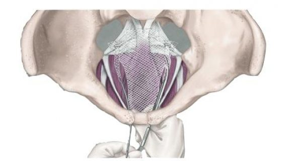 Illustration of Transvaginal Mesh procedure