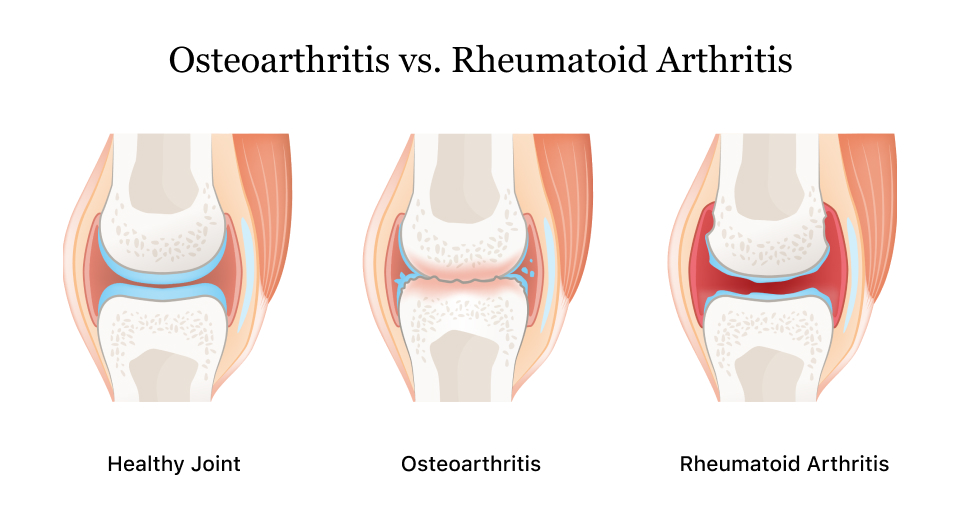Arthritis A Guide To The Types Symptoms Causes Treatment