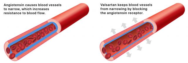 Illustration of how Valsartan releases high blood pressure in blood vessels.