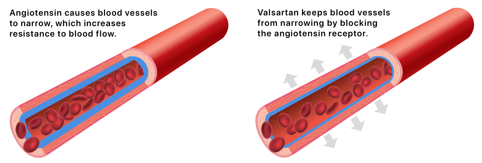 Illustration of how Valsartan releases high blood pressure in blood vessels.