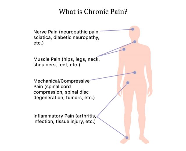 How chronic pain affects different parts of the body