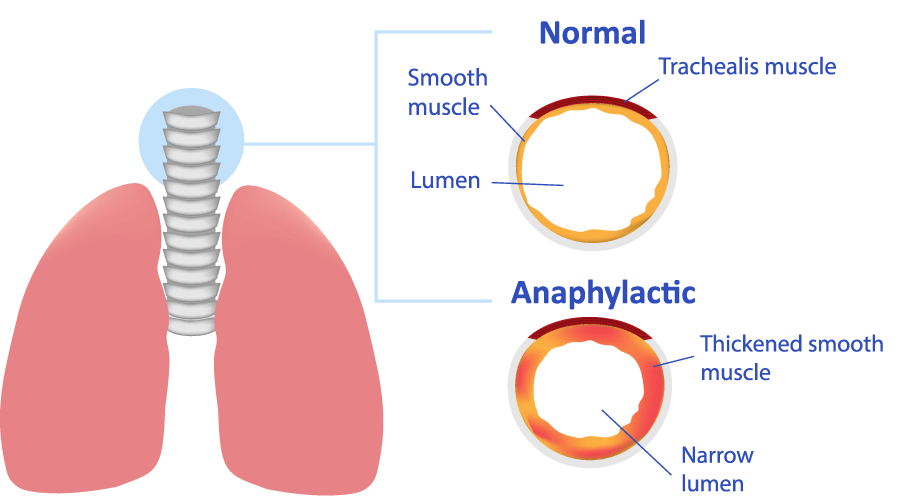 Anaphylaxis Swelling Diagram
