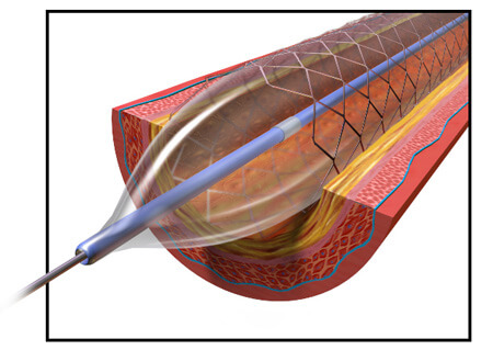 Illustration of Inflated Angioplasty Balloon in Blood Vessel