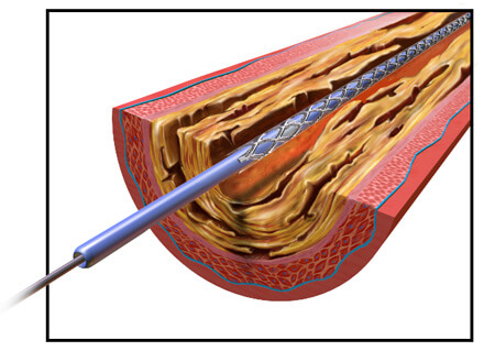 Illustration of Deflated Angioplasty Balloon in Blood Vessel