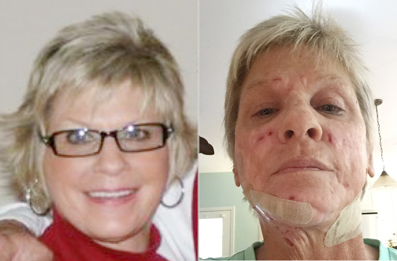 Wormlike Growths Ruin Life of Cosmetic Surgery Patient