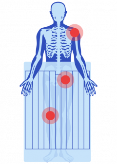 Illustration of Bair Hugger Warming Blanket
