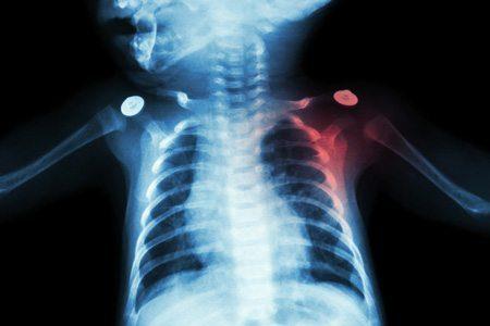 x-ray of brachial plexus palsy