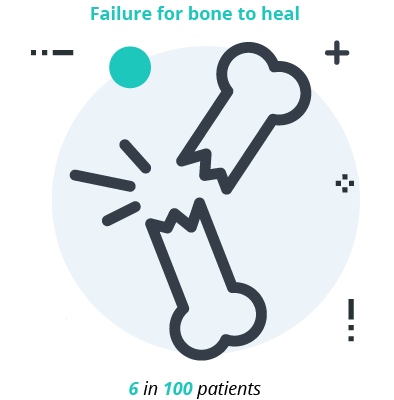Broken Bone Icon