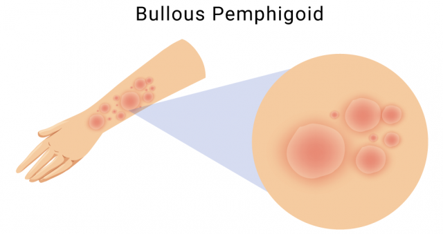 Illustration of bullous pemphigoid