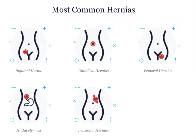 Most Common Hernia