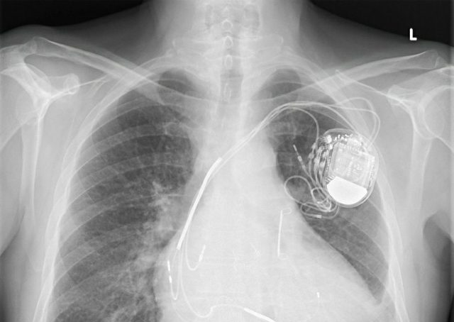 X-Ray Showing Medical Defibrillator in Chest Cavity