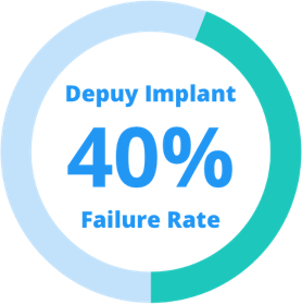DePuy hip implant 40% failure rate stat