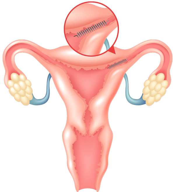 The Safety and Effectiveness of the Essure (Model ESS505) Device to Prevent Pregnancy in Women