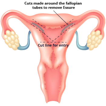 Diagram of How Essure is Removed