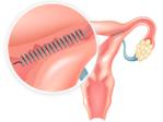 Essure diagram in uterus