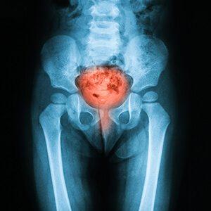 Bladder Cancer Affected Area