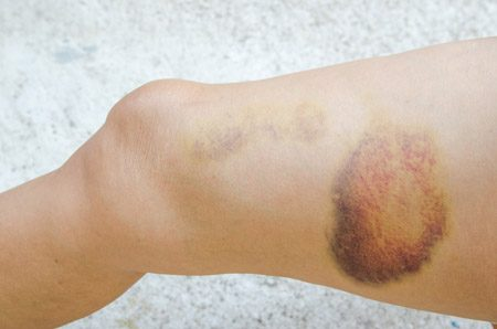 Image of a hematoma on a leg